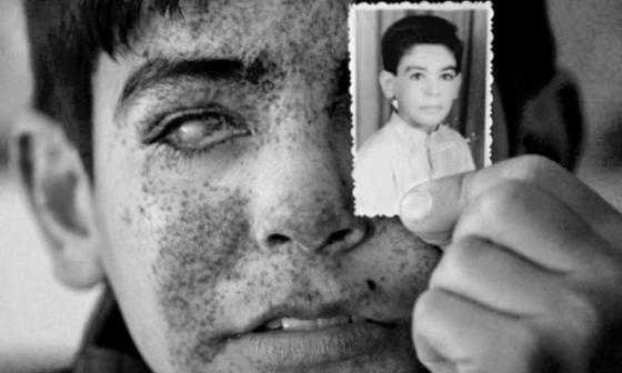 Boy blinded by illegal weapons