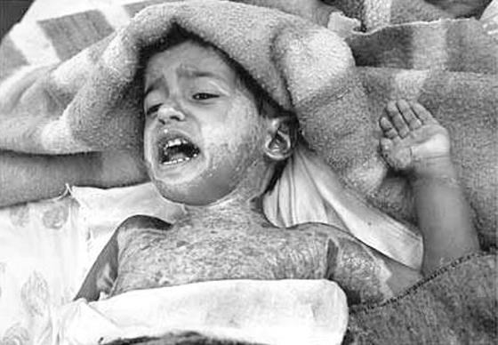 Child injured and in pain