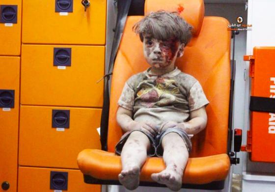 Allepo boy in ambulance